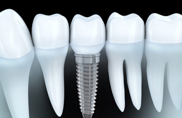 How Dental Implants Help Replace Multiple Missing Teeth